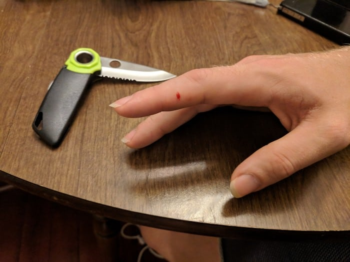 A cut a tester received on his finger from handling the Edelrid Rope Tooth