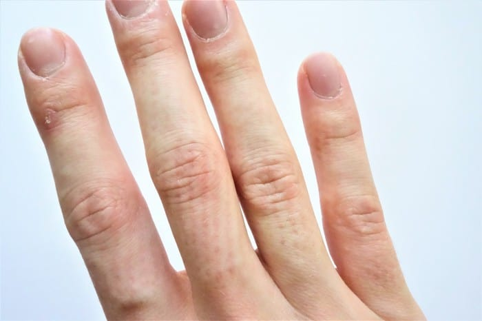 My fingers after massaging them with the Goda Acupressure Massage Ring